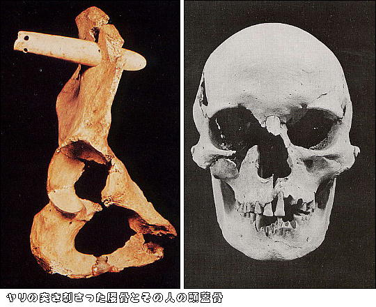 上黒岩岩陰遺跡投槍が刺さった人骨